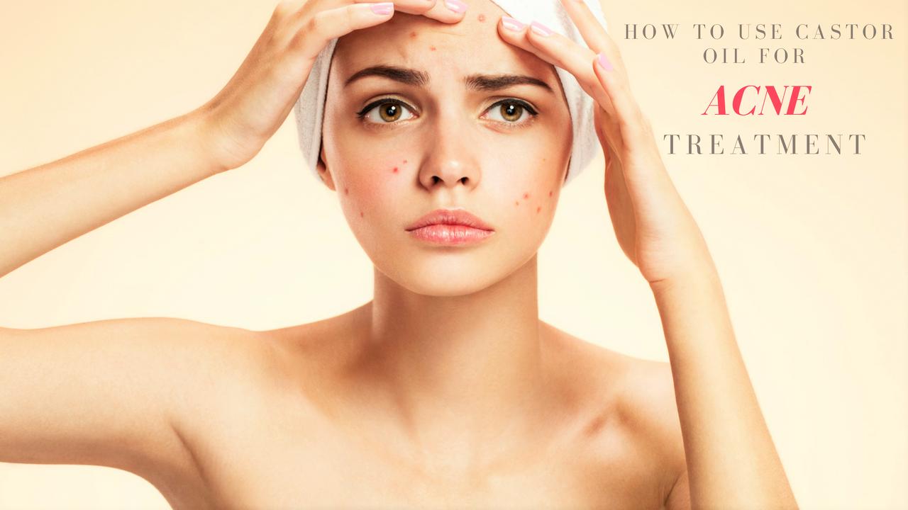 Castor Oil Acne Treatment