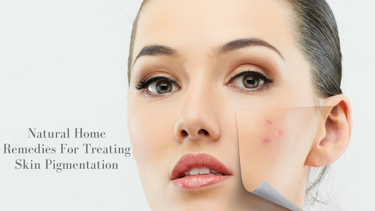 Natural Home Remedies For Treating Skin Pigmentation