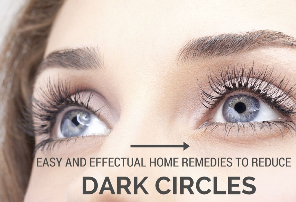 Home Remedies Dark Circles
