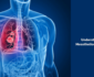 Mesothelioma Cancer Treatment