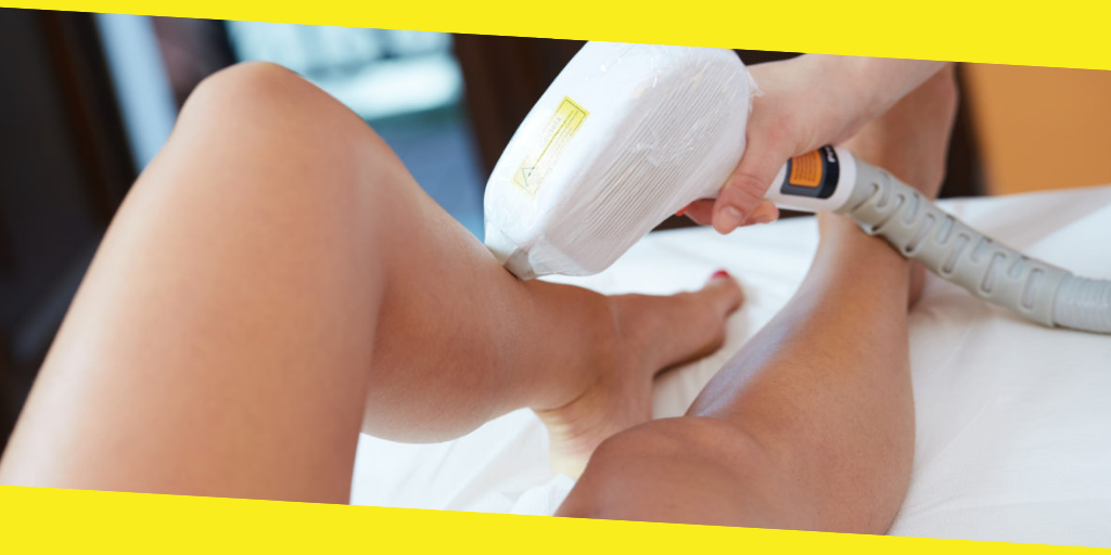 Common Myths About Laser Hair Removal Treatment